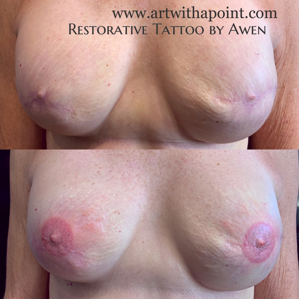Breast reconstruction tattoo